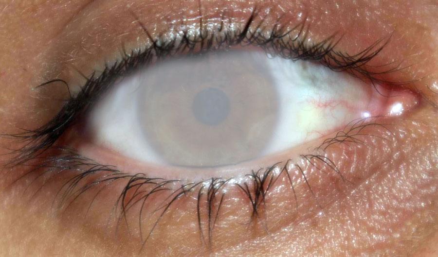Причины бельма на глазу могут носить генетический характер