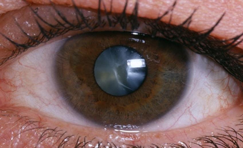 При катаракте проводить авторефрактометрию нельзя
