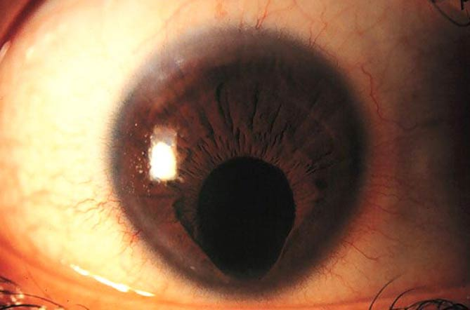 При лечении используются контактные линзы