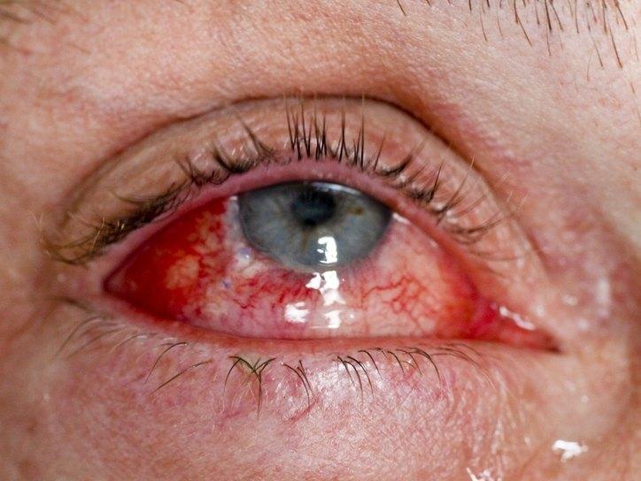 Проникающая травма глаза