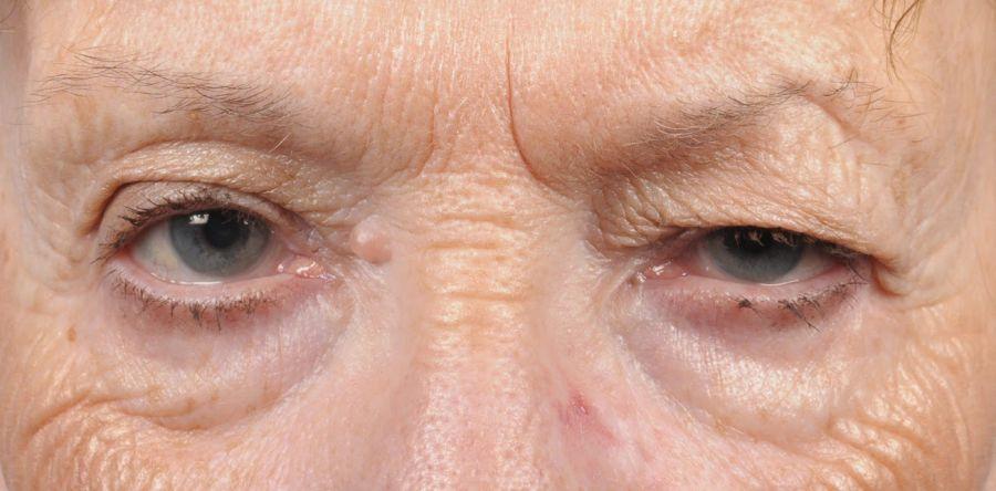Птоз верхнего века часто диагностируется у пожилых людей