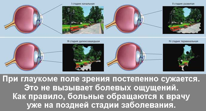Развитие глаукомы