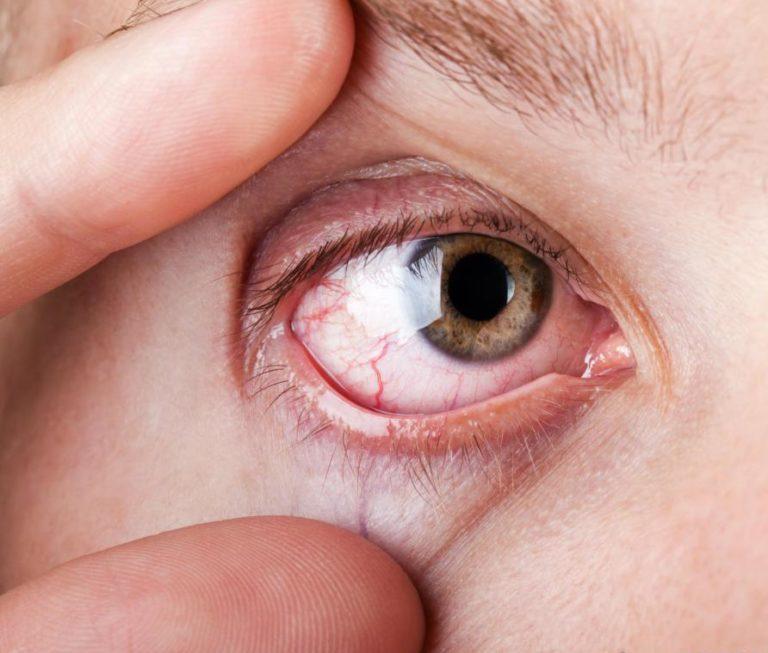 Почему болят глаза от света