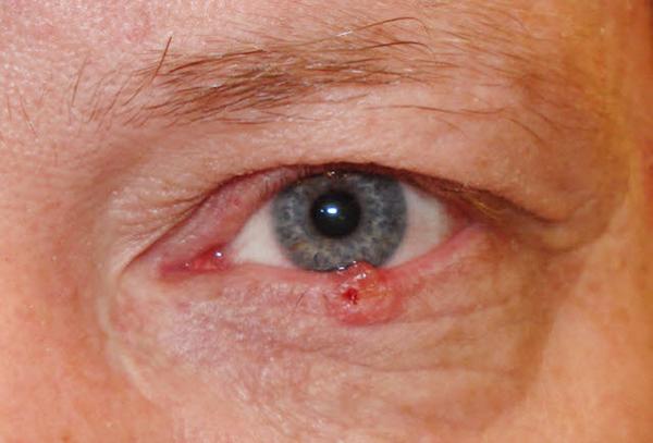 лечение рака глазного яблока
