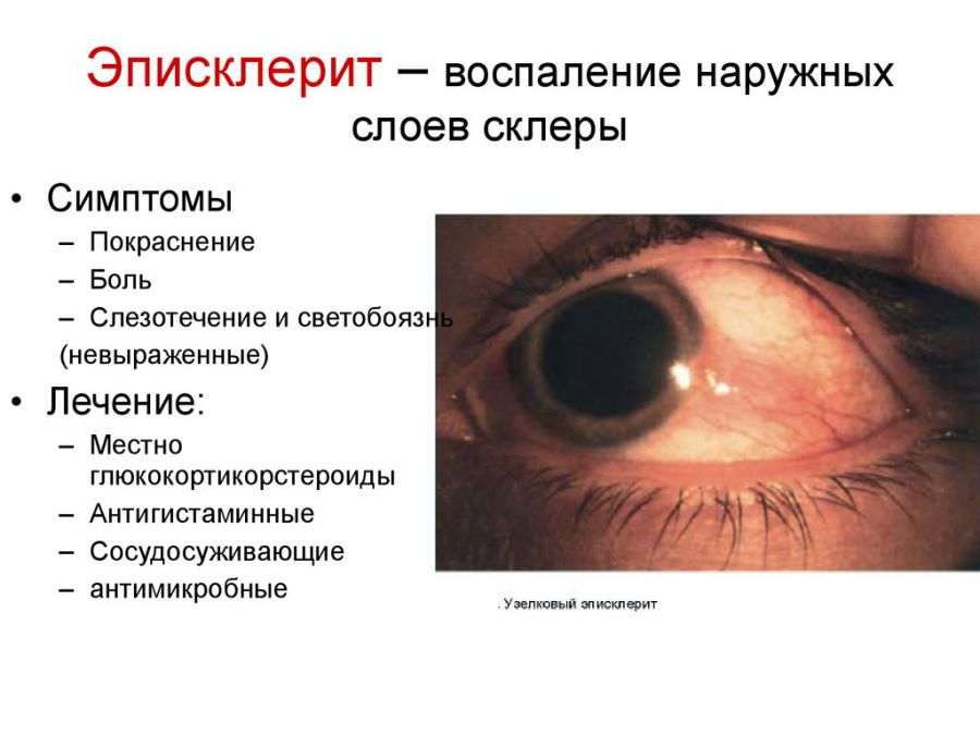 Симптоматика эписклерита