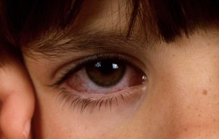 Симптомы конъюнктивита у детей