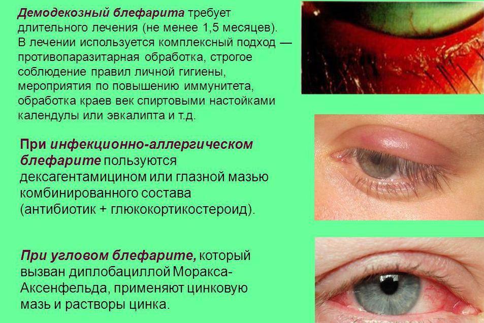 Симптомы разных видов блефарита