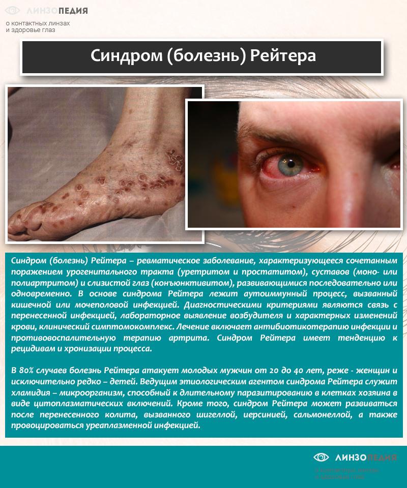 Синдром (болезнь) Рейтера