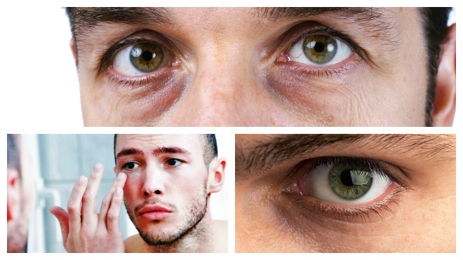 Синяки под глазами у мужчин