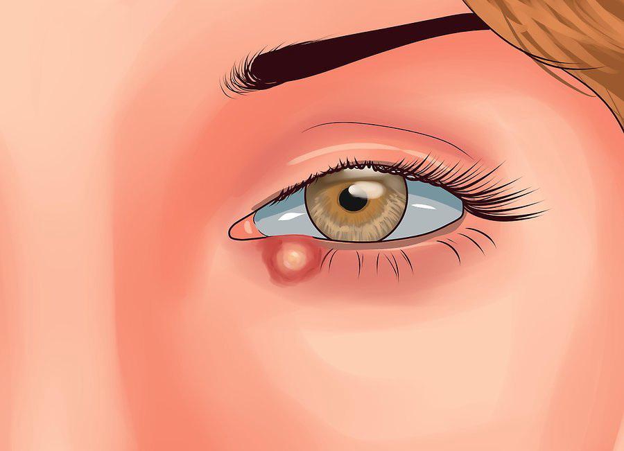 Следите за состоянием глаза