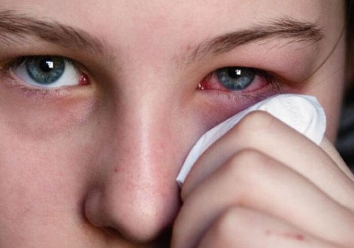 Существует немало причин гноения глаз