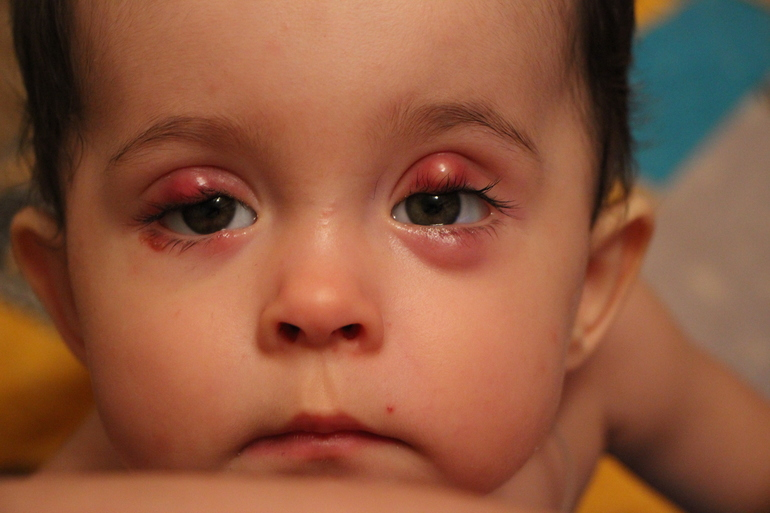 Существует теория, которая свидетельствует о том, что наличие гиперметропии (дальнозоркости) у ребенка способствует развитию халязиона