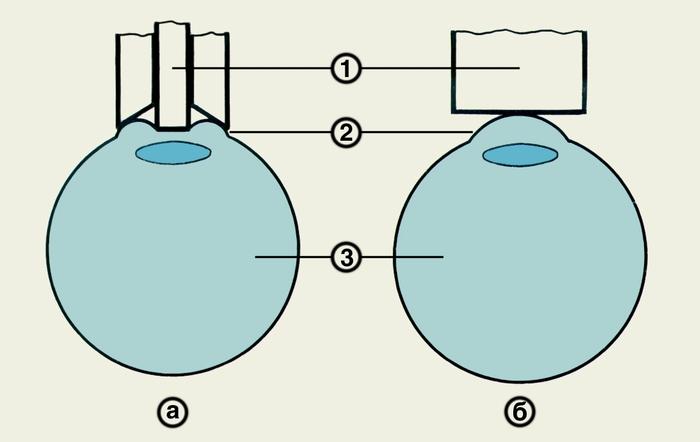 Схематическое изображение принципов импрессионной (а) и аппланационной (б) тонометрии