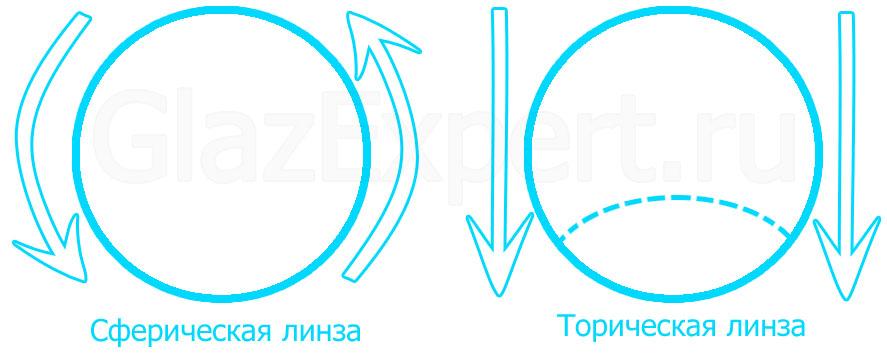 Схематичное изображение отличий сферической и торической линзы