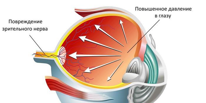 Схема повышенного внутриглазного давления и повреждения зрительного нерва