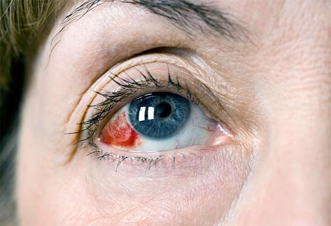 Травма глаза
