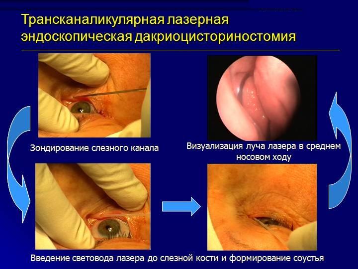 Трансканаликулярная лазерная эндоскопическая дакриоцисториностомия