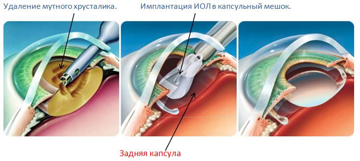Удаление мутного хрусталика. Имплантация ИОЛ в капсульный мешок