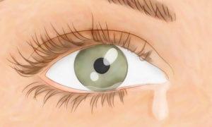Сухой глаз. Капли — какие лучше?