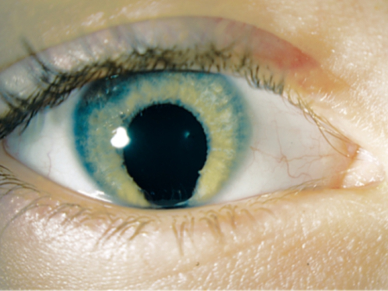 Фото колобоми оболочки глаза