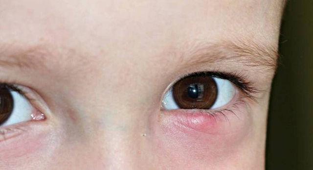 Халязионы век. Лечение у ребенка