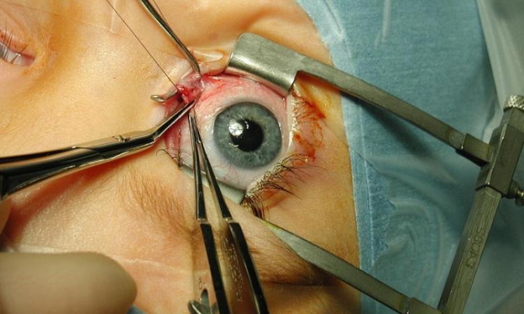 Хирургия глаза