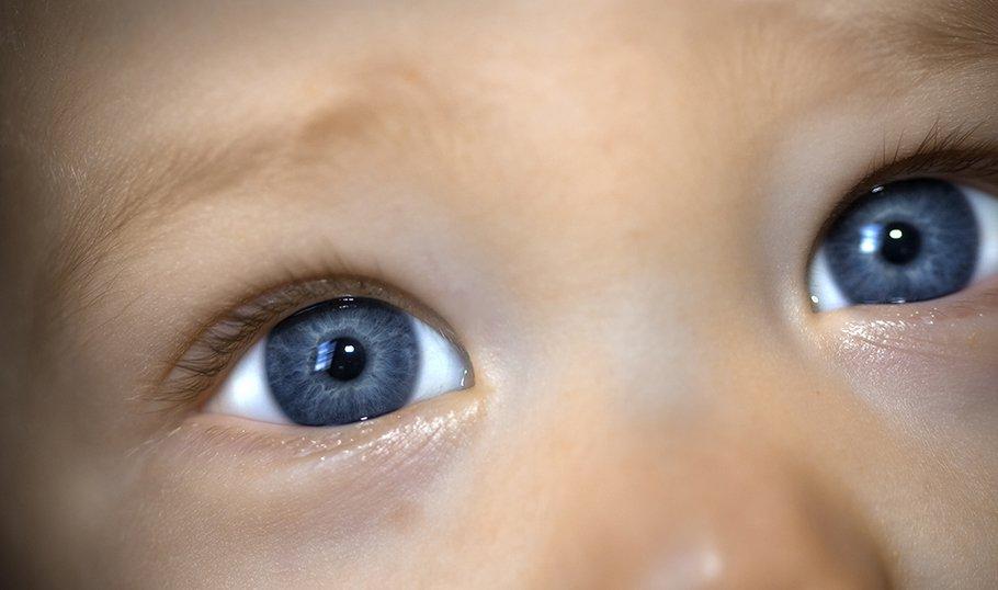 Цвет кругов под глазами может быть разным