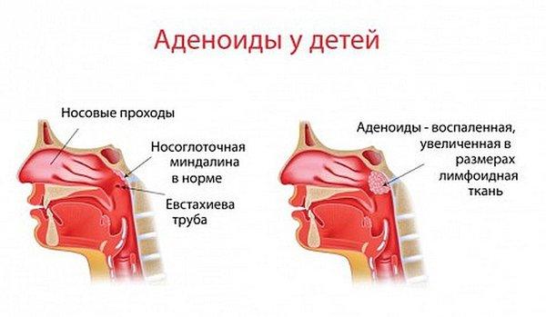 Что такое аденоиды
