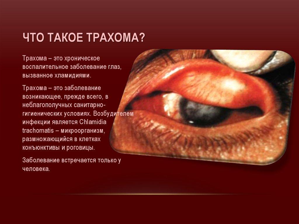 Что такое трахома