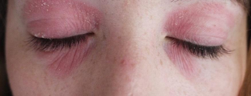 Шелушение и покраснение кожи вокруг глаз