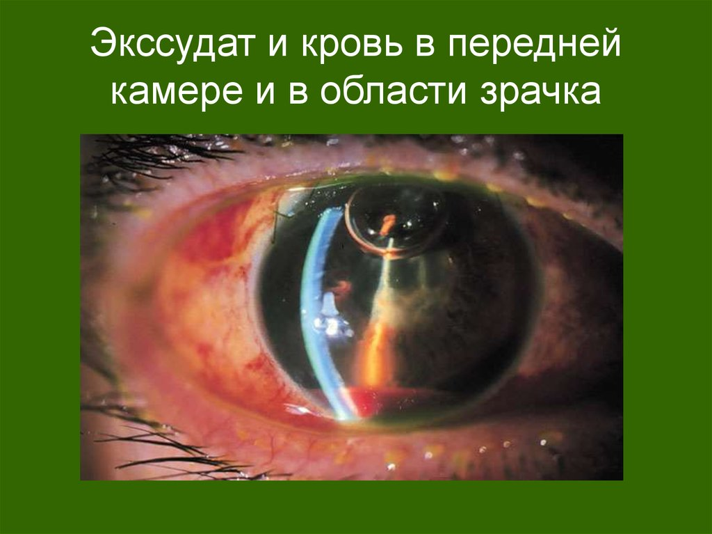 Экссудат и кровь в передней камере и в области зрачка