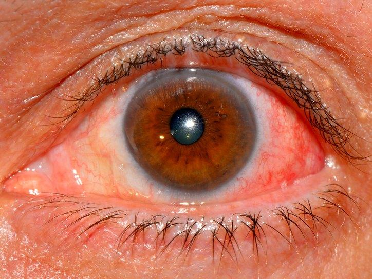 Эписклерит - симптомы и лечение