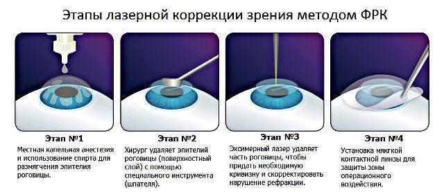 Этапы лазерной коррекции зрения методом ФРК