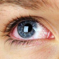 Глазные