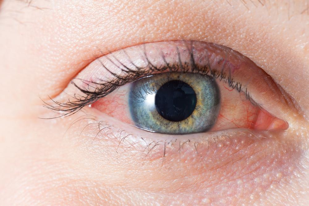 Конъюнктивит является воспалением конъюнктивы – тонкой прозрачной ткани, которая расположена над белой частью глаза и является внутренней стороной век