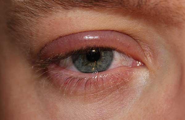 Аллергия на веках глаз: лечение