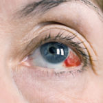 Кровоизлияние в глаз — причины и лечение