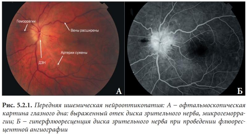 Передняя ишемическая нейрооптикопатия: А – офтальмоскопическая картина глазного дна: выраженный отек диска зрительного нерва, микрогеморрагии; Б – гиперфлюоресценция диска зрительного нерва при проведении флюоресцентной ангиографии