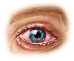 Воспаление правого глаза