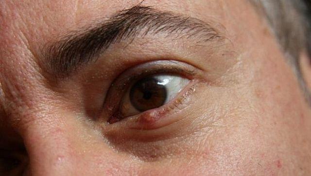 Чиряк под глазом