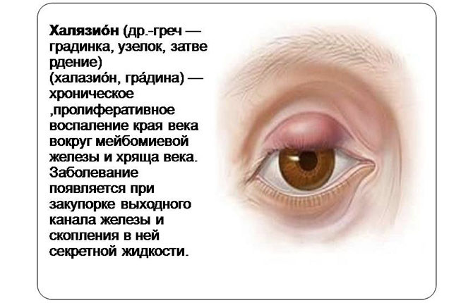 Как лечить чирей на глазу - эффективные способы в домашних условиях