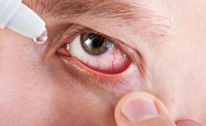 Использование глазных капель в домашних условиях