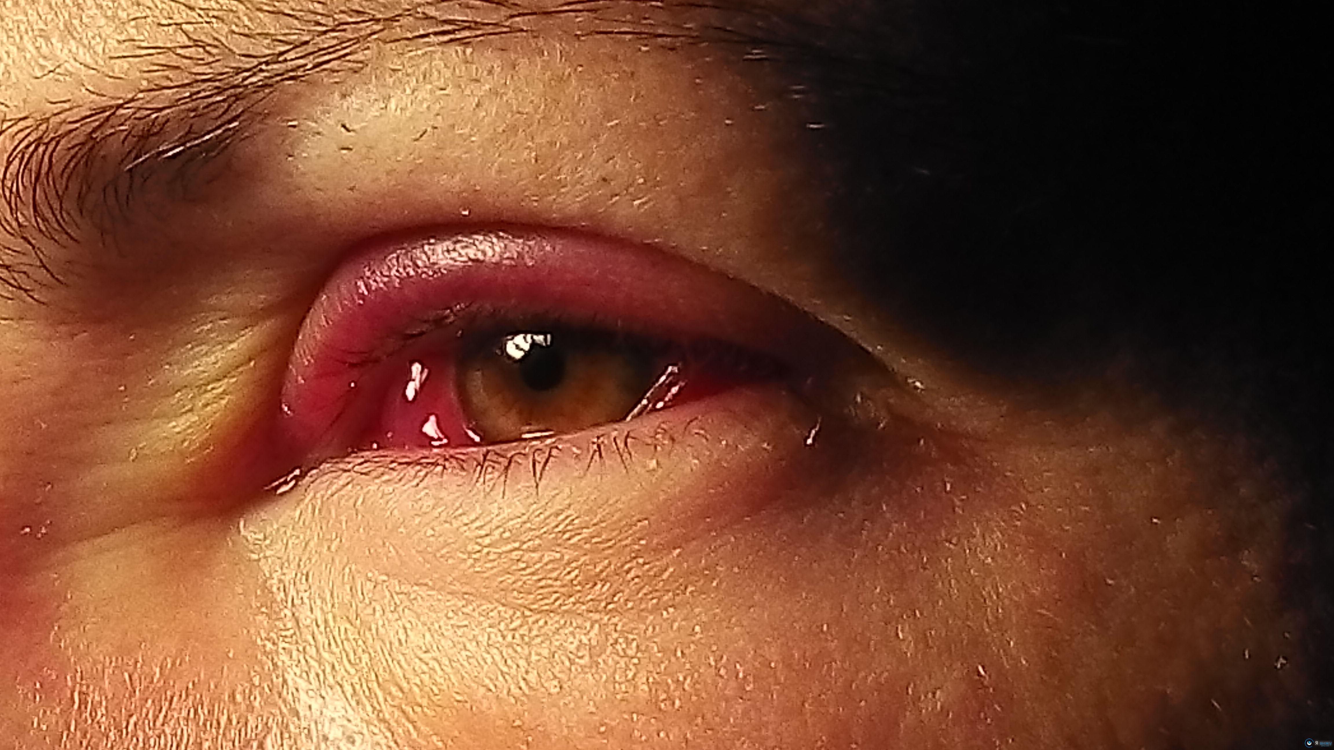 Красные веки глаз: причины у взрослого человека