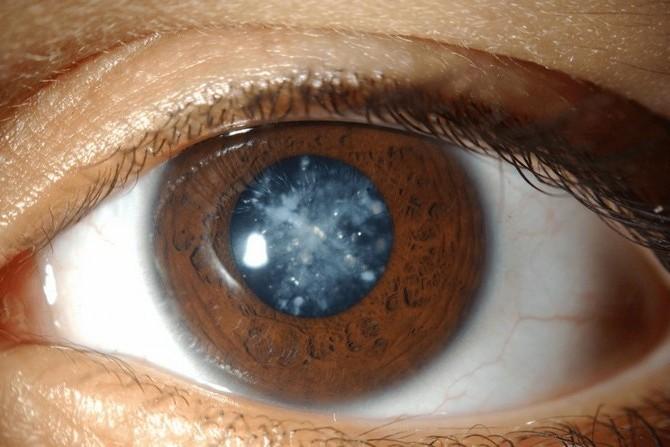 Пациент с помутнением хрусталика глаза