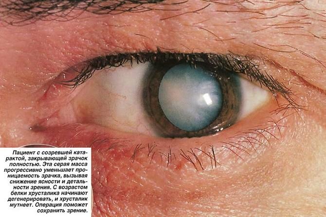Пациент с созревшей катарактой