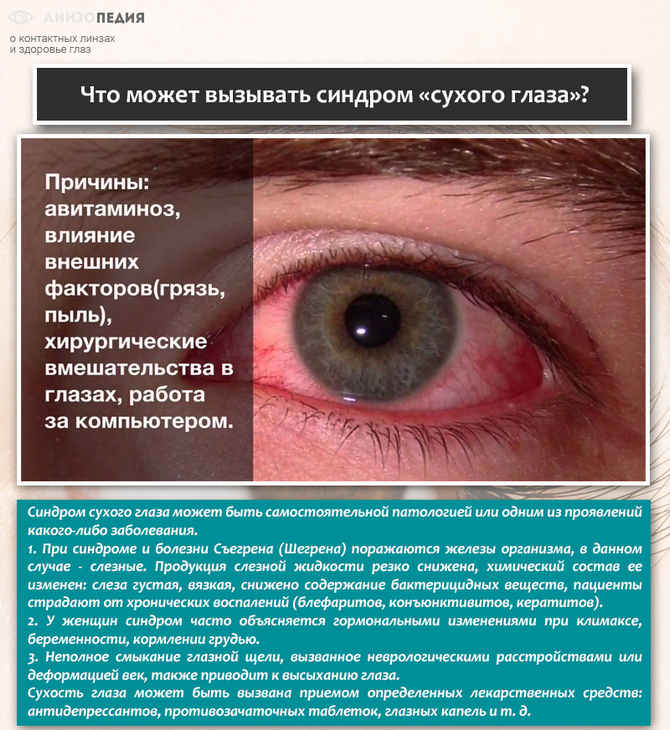 Что может вызывать синдром «сухого глаза»
