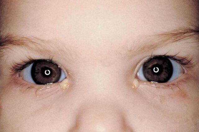 Закисшие глаза у ребенка