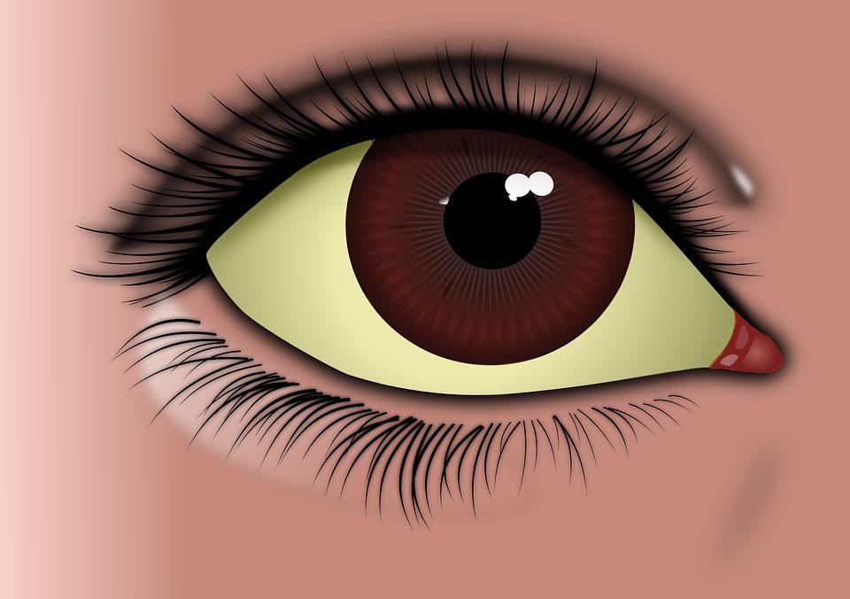 Белки глаз желтые: причины и как лечить