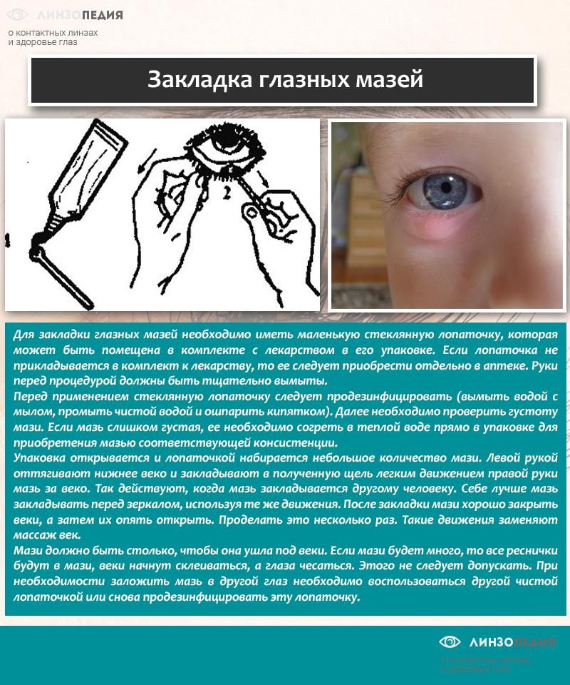 Закладка глазных мазей