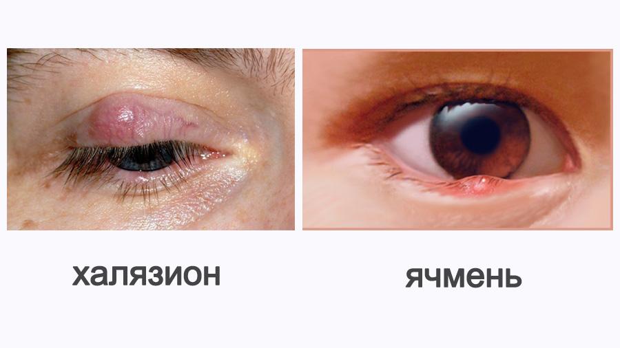 Как отличить халязион от ячменя